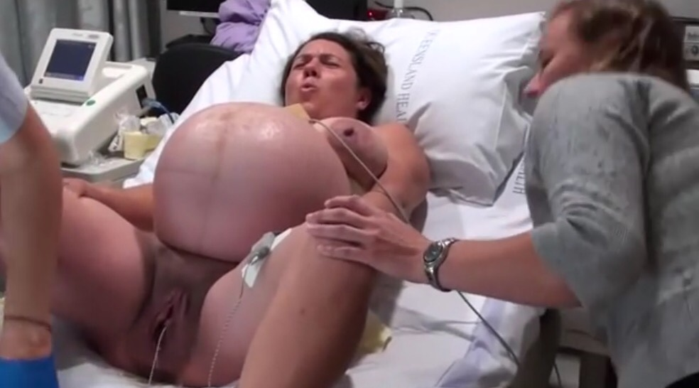 Vaginal Birth After Cesarean Section